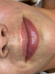 Image of Cosmetic Lip Tattoo