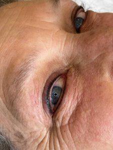Photograph of Permanent Tattoo Eyeliner