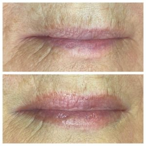 before and after photo of permanent makeup lips