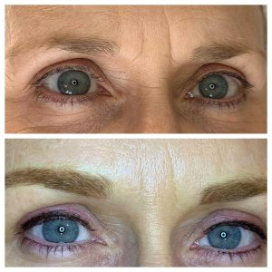 Photograph of Before and After Tattoo Eyeliner