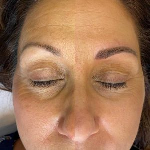 Photo of Before and After Permanent Microblading Eyebrow