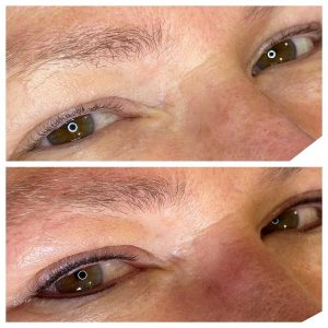 Image of before and after eyeliner tattoo
