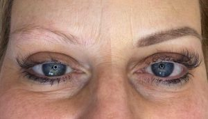 Photo of Before and After of Eyebrow microblading