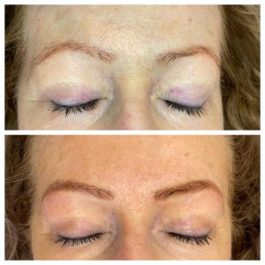Image of Before and After Eyebrow Tattoo
