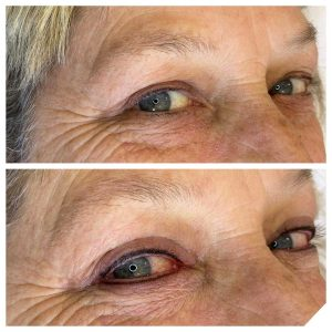 Before and After Photo of Cosmetic Eyeliner Tattoo