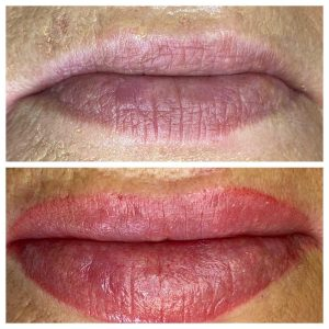 Before and After Image of Cosmetic Lip Tattoo