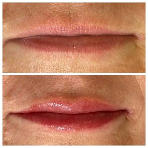 Image of Before and After Lip Cosmetic Tattoo