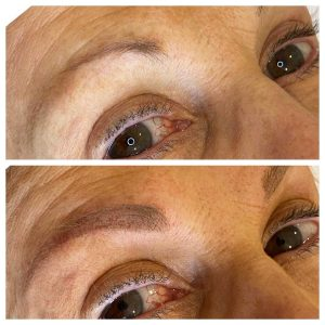Tattoo on Eyebrows Before and After Photo