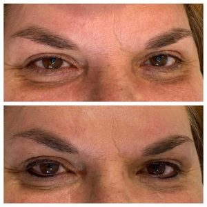 Photograph of Before and After Cosmetic Tattoo Eyeliner