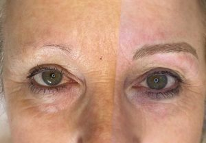 Before and After Photo of Eyebrow Feathering