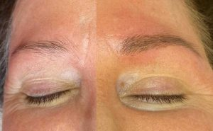 Microbalding Eyebrows Before and After Image