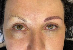 Photograph of Before and After Eyebrow Tattoo