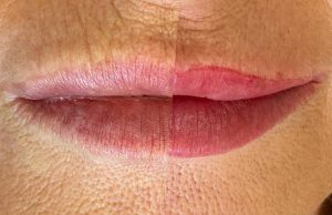 Photograph of Before and After Cosmetic Lip Tattoo