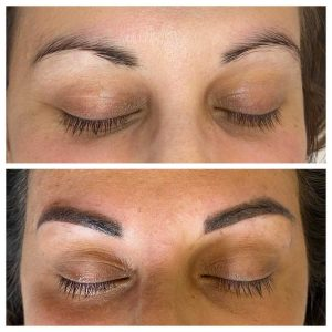 Image of Before and After Eyebrow Tattooing