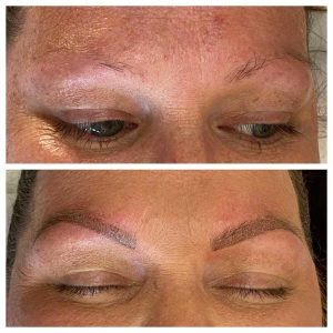 Microblading in Eyebrows