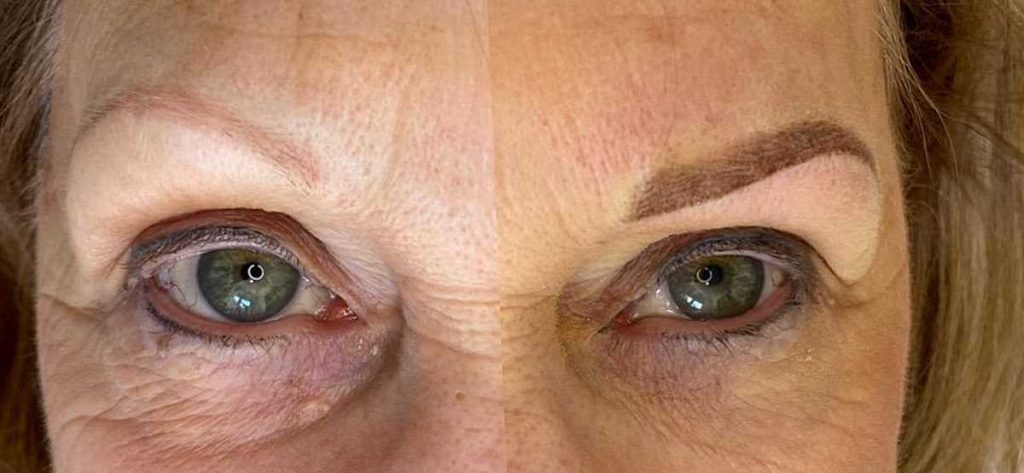 Image of Before and After Eyebrow Feathering