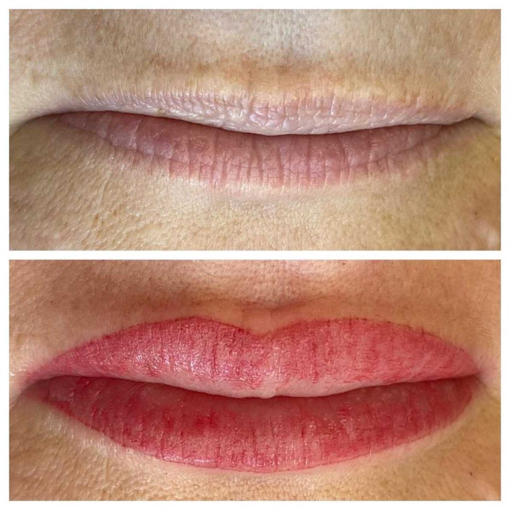 Cosmetic Lip Tattoo Before and After Image