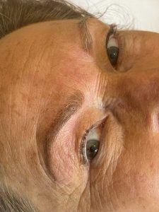Image of eyebrow tattooing