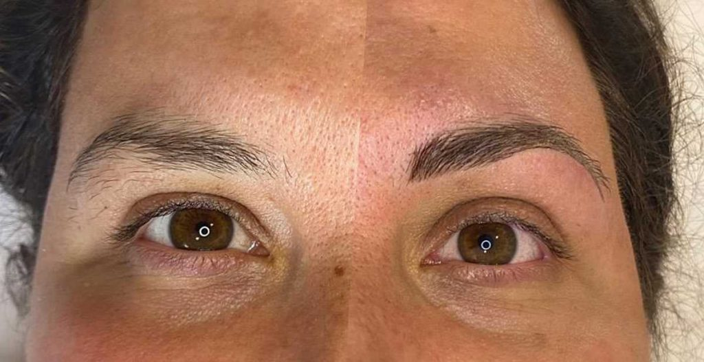 Before and After Image of Eyebrow Shaping