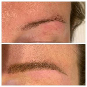 Eyebrow Microblading Before and After Image