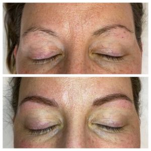 Photograph of Before and After Eyebrow Feathering