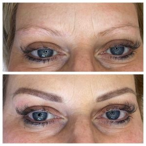 Before and After Photograph of Eyebrow Tattoo