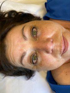 Photograph of Semi Permanent Eyeliner Tattoo