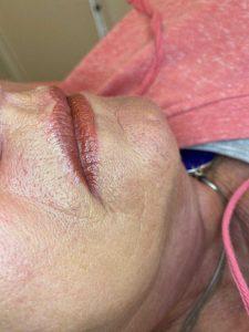 Photograph of Cosmetic Lip Tattoo