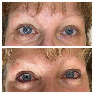 Before and After Image of Eyeliner Tattoo
