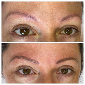 Image of Before and After of Eyebrow Microblading