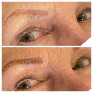 Before and After Permanent Eyebrow Feathering