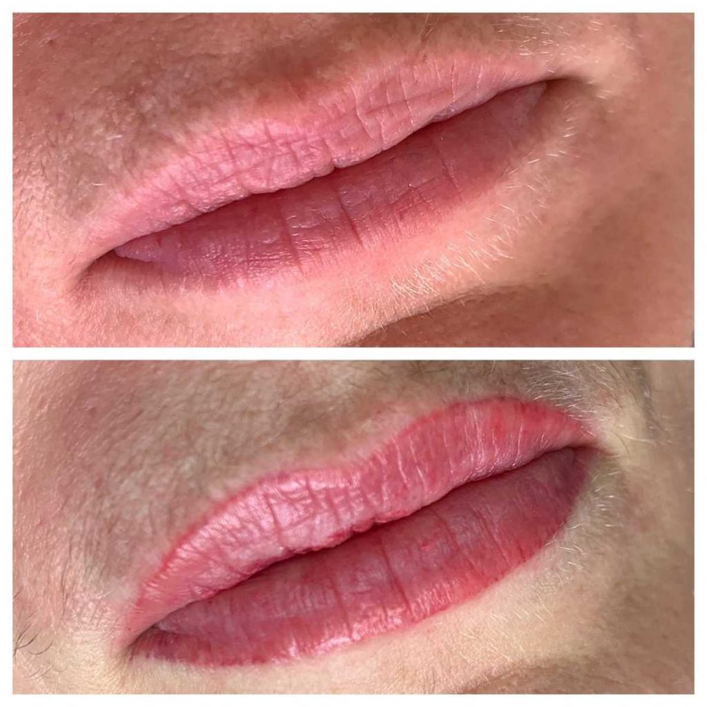 Cosmetic Lip Tattoo Before and After