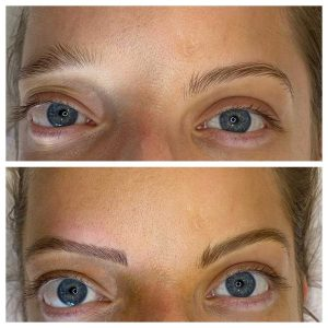 Photograph of Before and After eyebrow microblading