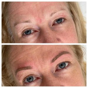 Before and After Eyebrow Cosmetic Tattoo