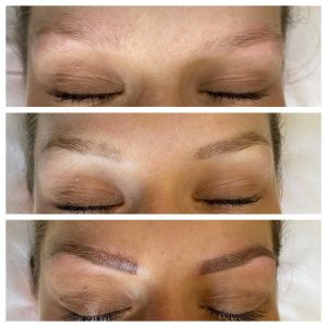 Cosmetic Eyebrow Tattoo Before an After Image
