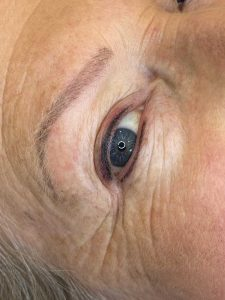 Photograph of Cosmetic Eyeliner Tattoo