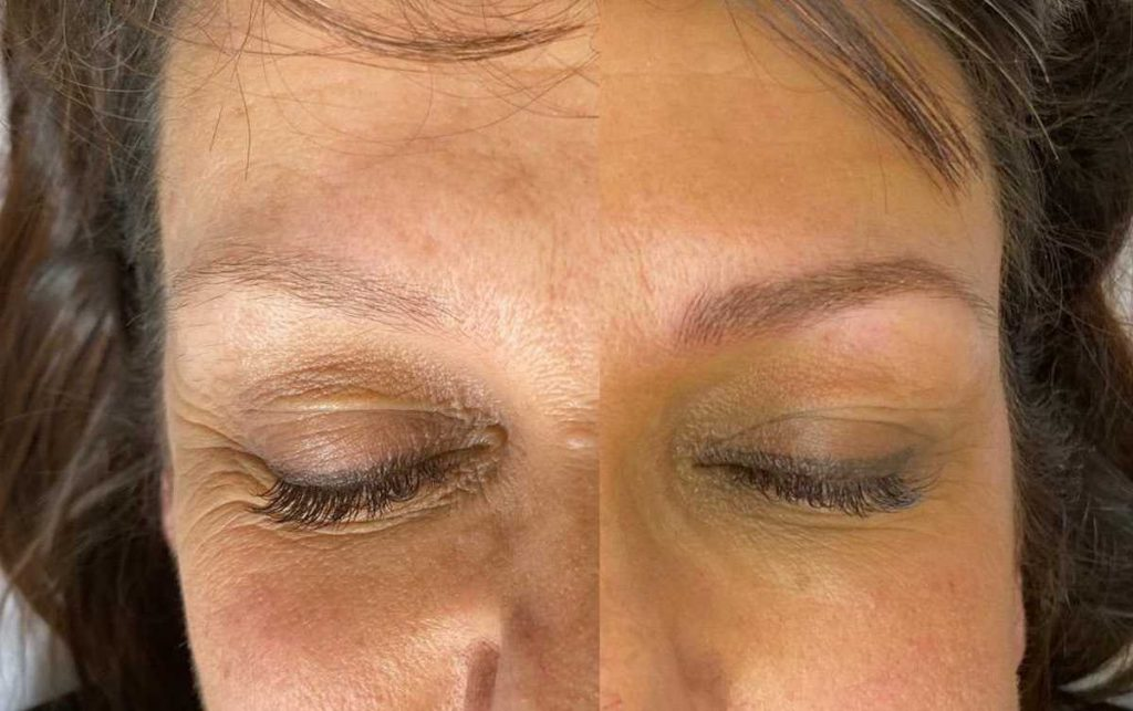 Before and After Image of Cosmetic Tattoo Done