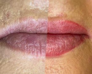 Image of Lip Tattoo Before and After