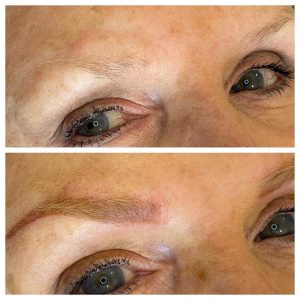Eyebrow Tattoo Before and After Photo