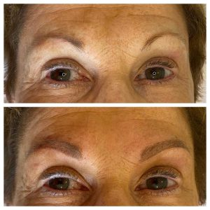 Before and After Photo Eyebrow Tattoo